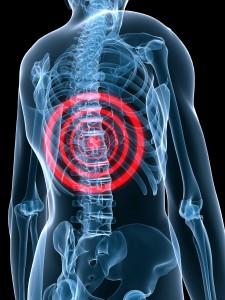minimalinvasive Therapie bei Rückenschmerzen und Bandscheibenvorfall